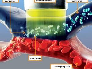 Сепсис (Заражение крови)