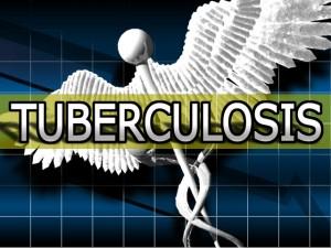 Новосибирских больных туберкулезом привлекли к лечению с помощью выдачи продуктовых наборов