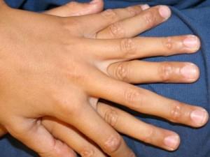 Гранулема инородного тела
