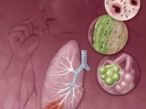 Пневмония  — профилактика, диагностика, лечение