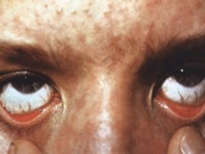 В Амурской области возбуждено уголовное дело по факту массового заболевания корью пациентов больницы в Благовещенске