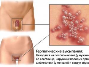 Клинический разбор случая генитального герпеса у молодой женщины