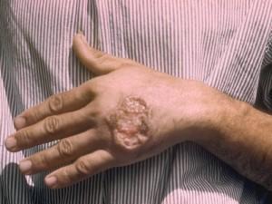 Мономицин – режим дозирования