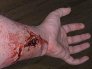 Вакуум–терапия в лечении ран и раневой инфекции