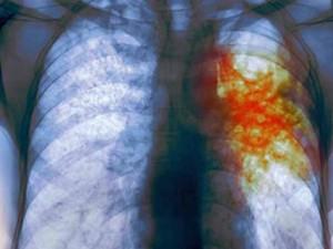 Дискуссионные вопросы по проблеме туберкулеза