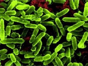 Причиной отравления 67 детей в школьной столовой Евпатории стала синегнойная бактерия