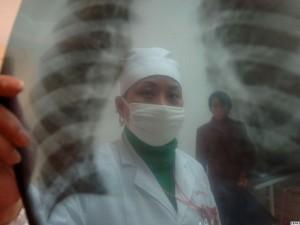 Почти на четверть снизилась заболеваемость туберкулезом в Барнауле с начала года
