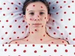 В Омске 9 человек заболели краснухой