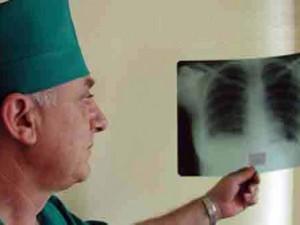 В Кривом Роге сложилась опасная ситуация по заболеваемости туберкулезом