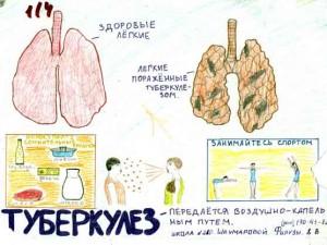 Показатель заболеваемости туберкулёзом в Смоленской области упал на 7,7%