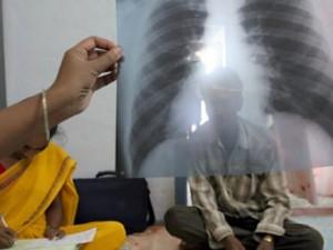 ВОЗ потратит на борьбу с туберкулезом 47 миллиардов долларов