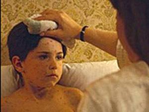 В Новосибирске 5 школьников заболели серозным менингитом