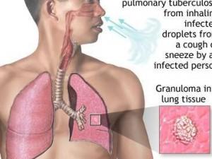 Отделение для больных внелёгочными формами туберкулеза открылось в Кемерово
