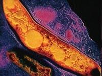 Соединения железа оказались эффективными против туберкулезной палочки
