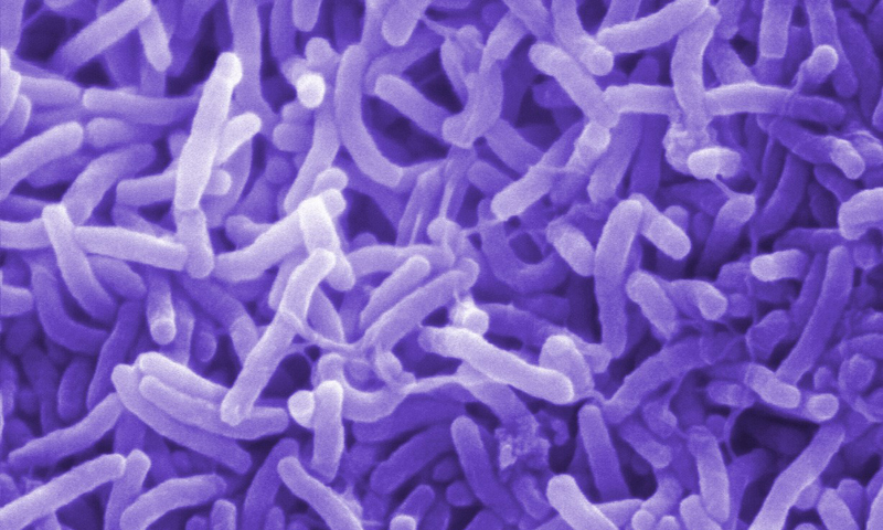Эпидемию холеры на Гаити вызвал южно-азиатский штамм возбудителя