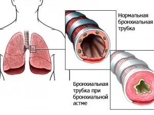 Стационарозамещающие технологии при оказании НП детям с бронхиальной астмой