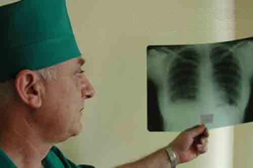 Больной активной формой туберкулеза может инфицировать до 15 человек в год