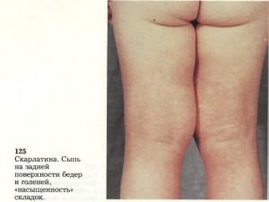 Симптомы скарлатины у детей и взрослых. Осложнения, методы лечения скарлатины