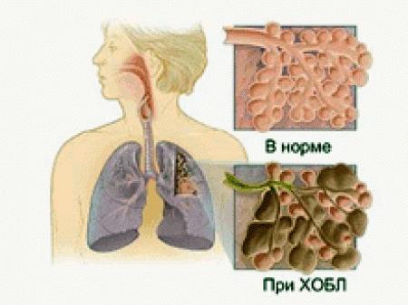 ХОБЛ резко повышает риск развития легочного туберкулеза