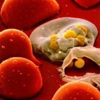 Выявлено почему ВИЧ убивает клетки иммунитета