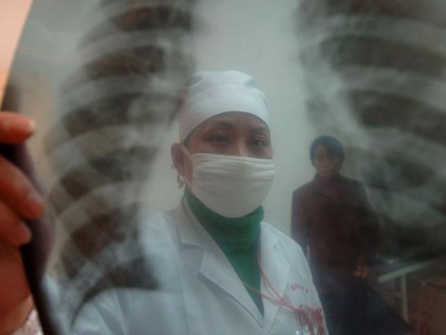 Английские нищие – источник вспышки туберкулеза