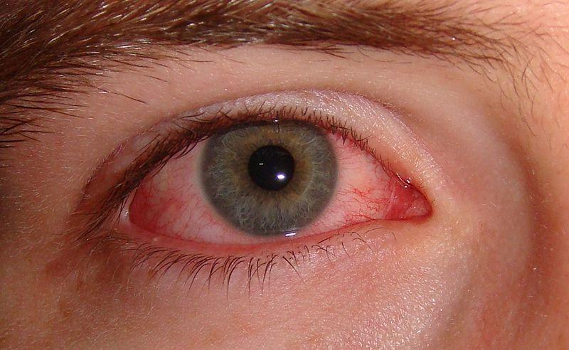 Комбинированные препараты в современной терапии инфекционно–воспалительных поражений глаз бактериальной этиологии