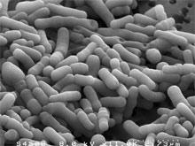 Раскрыт секрет бифидобактерий, защищающих кишечник от палочки E.coli