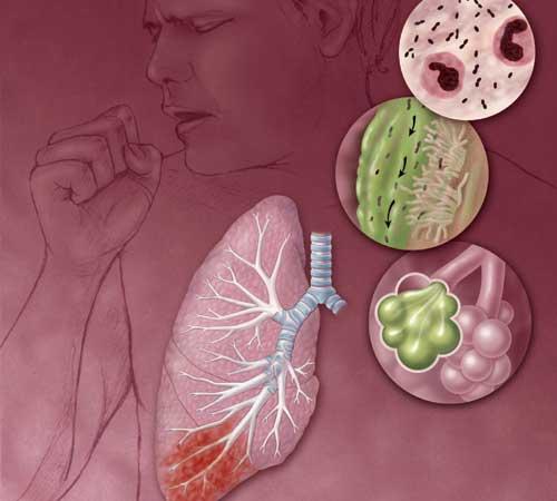 Возбудитель пневмонии подменил три четверти генома