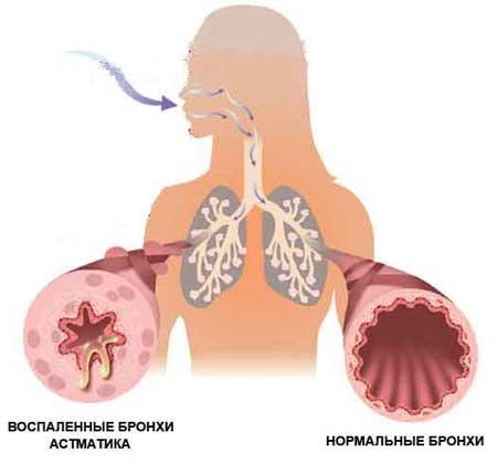 Новые подходы в комплексном лечении детей с бронхиальной астмой, часто болеющих острыми респираторными инфекциями