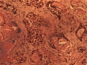 Denufosol, не подтвердил своей эффективности для терапии поражения легких при муковисцидозе