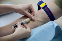 Анализ крови на австралийский антиген