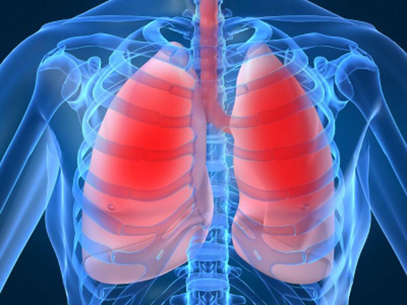 Ингаляционные кортикостероиды снижают смертность при ХОБЛ