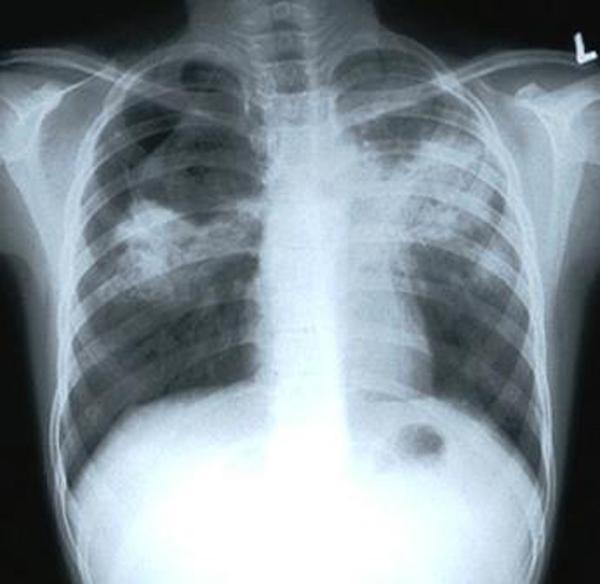 Туберкулез убивает ежегодно больше взрослых людей, чем любая другая инфекция