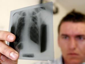 Новый препарат для выявления туберкулеза поступил в кемеровский тубдиспансер