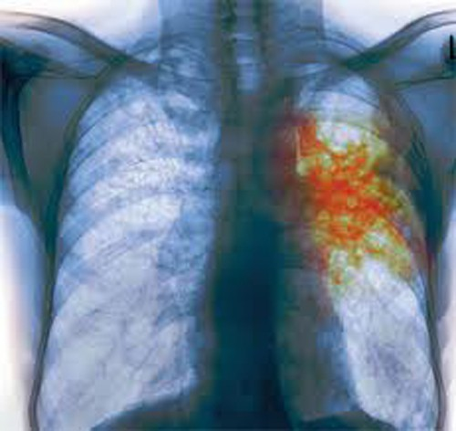 В Набережных Челнах начался декадник «Профилактика туберкулеза»