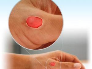 Голландские ученые борются с инфекциями с помощью «медового лекарства»