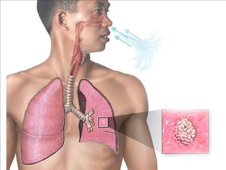 Минздрав счел борьбу Глобального фонда с туберкулезом неэффективной