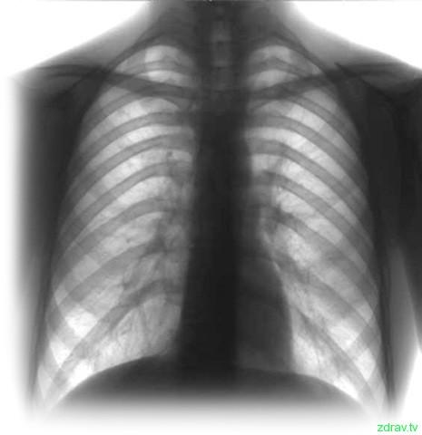 Для лечения больных туберкулезом, имеющим сочетанную форму с ВИЧ, будут создаваться специализированные отделения