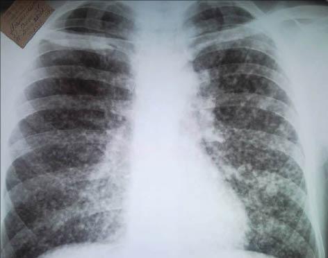 Бурятию атакует новый вид туберкулеза