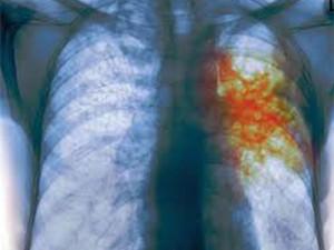 Заболеваемость туберкулезом в Волгоградской области снижается, но превышает среднероссийский показатель