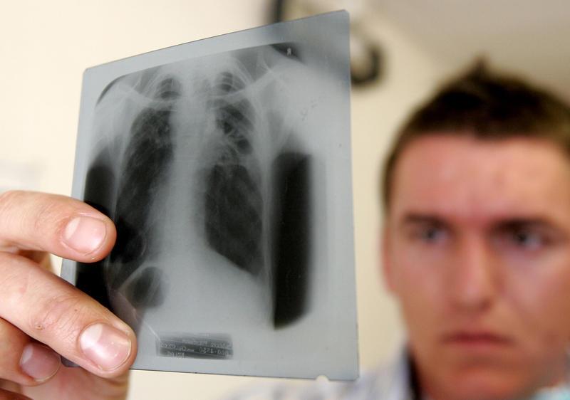 Всемирный день борьбы с туберкулезом отмечается 24 марта