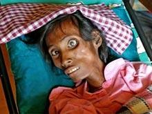 В Индии с катастрофической скоростью растет число заболевших ВИЧ