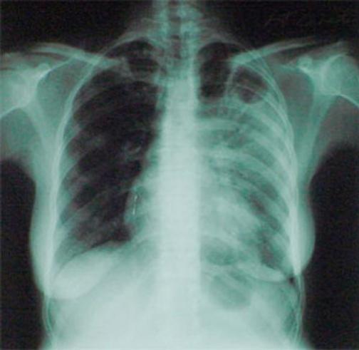 Свыше 70 проц больных туберкулезом в Улан-Удэ — безработные