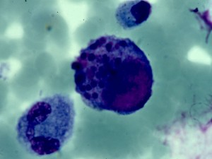 Ученые тестируют вакцину от цитомегаловируса