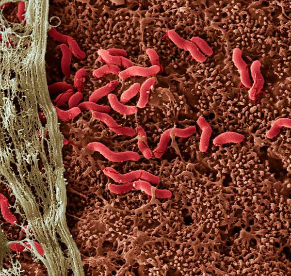 Кишечная микрофлора как причина депрессии