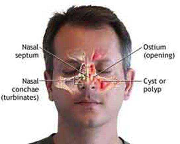 Диагностика и лечение полипозного синусита
