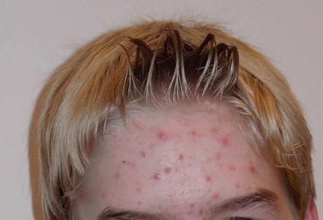 С болезнями кожи нужно бороться
