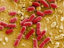Ученые создали супер-тест, выявляющий кишечную инфекцию