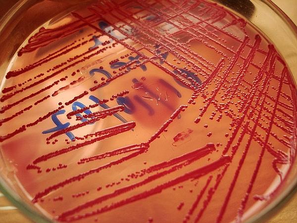 Европейский союз передал России штамм кишечной палочки, которая вызвала в Европе вспышку острой кишечной инфекции