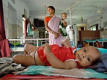 Таинственная инфекция унесла жизни около 30 индийских детей